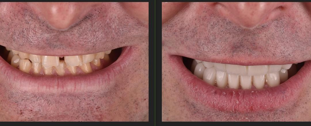 ¿Qué es el BRUXISMO, y como podemos ayudar a su tratamiento colaborando con su odontólogo en el centro de fisioterapia y osteopatía Perez-Ondina?